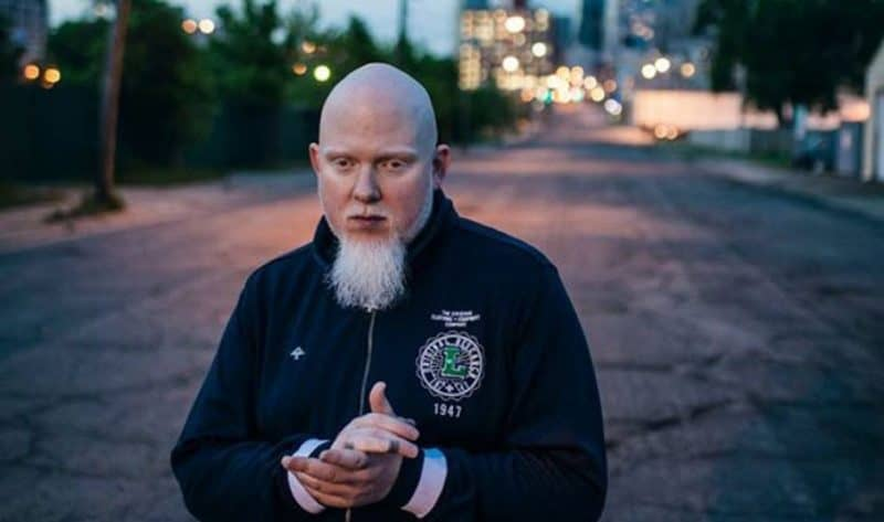 Greatest White Rappers - Brother Ali